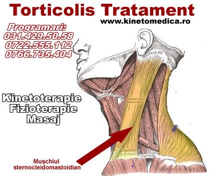 Tratamentul osteochondrozei cervicale la remediile populare
