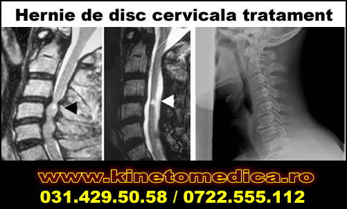 Hernia de disc: simptome, diagnostic, tratament