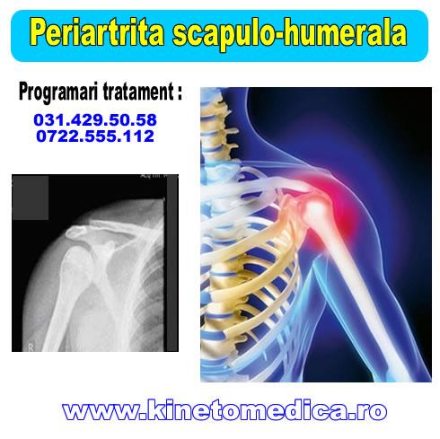 kinetoterapia in periartrita scapulo humerala articulația doare