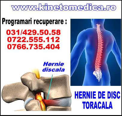 Hernie de disc lombară, postură antalgică - KineticFIT
