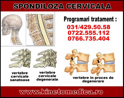 program de recuperare spondiloza cervicala este posibil să faci gimnastică cu dureri articulare